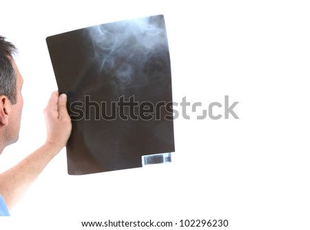 doctor looking at a xray in a white background