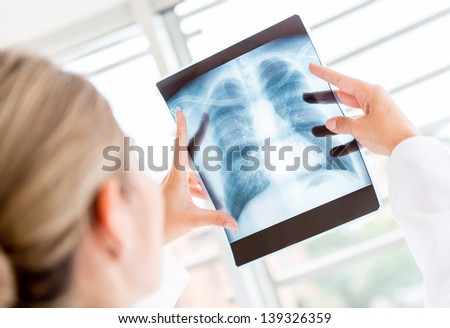Doctor looking at an x-ray in the hospital #139326359