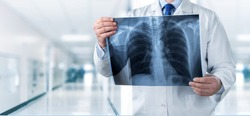 Doctor looking chest x-ray film in hospital