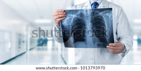 Doctor looking chest x-ray film in hospital #1013793970