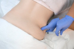 Doctor makes injection of ozone gas in patient abdomen on side on ozone therapy, closeup top view. Treatment, cure and remove of skin tags and stretches. Cosmetologist woman in gloves.