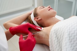 Doctor makes injections of botulinum toxin in the underarm area against hyperhidrosis in beauty salon. Female cosmetology and problems with sweating concept