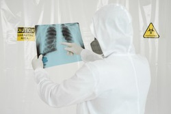 Doctor man with X-ray of lungs, fluorography, roentgen isolated on white background. Coronavirus concept.