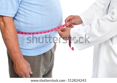 Doctor measuring obese man waist body fat. Obesity and weight loss. #312824243