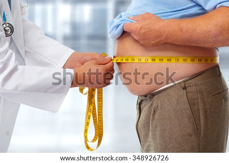Doctor measuring obese man waist body fat. Obesity and weight loss. Photo stock ©