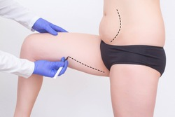 Doctor plastic surgeon makes a marker marker for a modern operation to remove subcutaneous fat from the hips and abdomen of a girl. Sociology of Plastic Surgery, Abdominoplasty and Laser Lipolysis