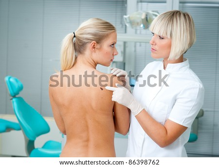 doctor pointing at melanoma on woman back