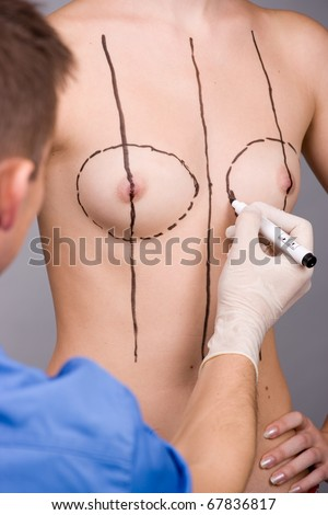 Doctor prepare to plastic surgery of breast Implant