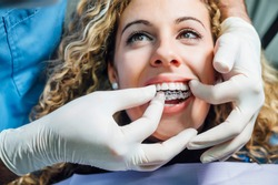 Doctor putting a clear dental aligner to the patient woman