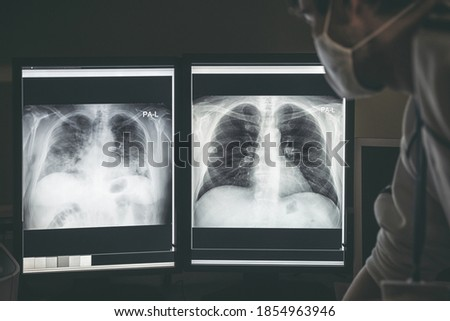 Doctor radiologist looking at difference between healthy and damaged lungs on x-ray image of patient with coronavirus Covid-19. Stock fotó ©
