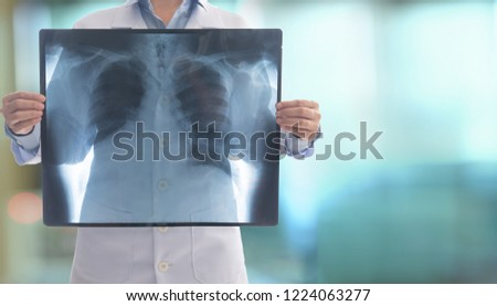 doctor radiology looking chest x-ray film of patient at hospital. #1224063277