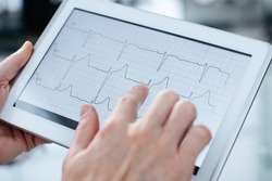 doctor reading a cardiogram on the screen of a digital tablet.
