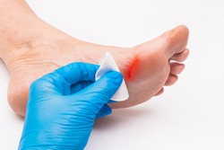Doctor's hand in a protective medical glove applies a cotton pad to the wound on the foot, woman's leg on a white background, close-up