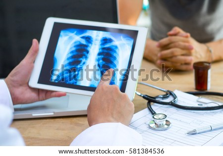 Doctor shows results to old patient x-ray of the lungs, smoking cigarettes problem
