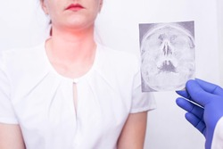 Doctor specialist holds X-ray picture on the background of a young girl who has tonsillitis of the throat and nasopharynx, inflammation of the lymph nodes