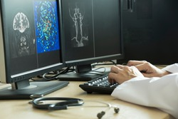 Doctor using computer to analyze MRI brain picture in radiology room of the hospital