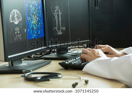 Doctor using computer to analyze MRI brain picture in radiology room of the hospital #1071145250