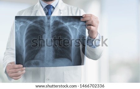 Doctor with radiological chest x-ray film for medical diagnosis on patient health on asthma, lung disease and bone cancer illness, healthcare hospital service concept  #1466702336
