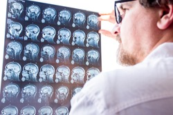 Doctors evaluation results of magnetic resonance imaging of brain in hospital concept photo. Neurologist in glasses keeps hand on glass of negatoscope MRI scan and examines structure of brain tissue