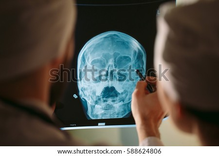 Doctors watching x-ray of patient. #588624806