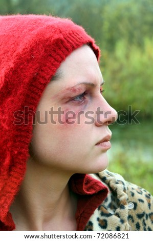 Domestic violence victim, a young  woman abused.
