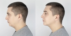 Double chin lift. Before and after plastic surgery, mentoplasty or face-building. Chin fat removal and facial contour correction. Concept of modern medicine and changes in body contours. Facelift