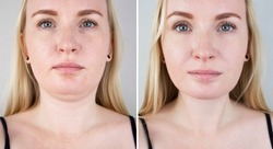 Double chin lift in women. Photos before and after plastic surgery, mentoplasty or facebuilding. Chin fat removal and face contour correction