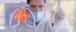 double exposure of coronavirus covid-19 infected blood sample in sample tube in hand of coronavirus scientist with biohazard protection cloth and pneumonia lung, coronavirus covid-19 vaccine research