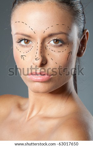 Drawn lines on a  brunette woman's face as marks for facial plastic surgery
