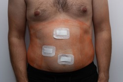 dressing the wound after laparoscopic surgery
