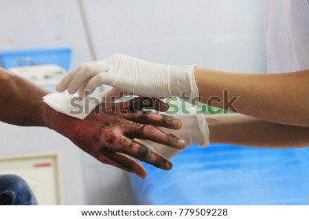 Photo of  Dressing wound burn of second degree of wrist and hand with blur