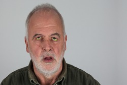 Drug side effects. An older man with drooping and pale green eyes in front of a white wall.
