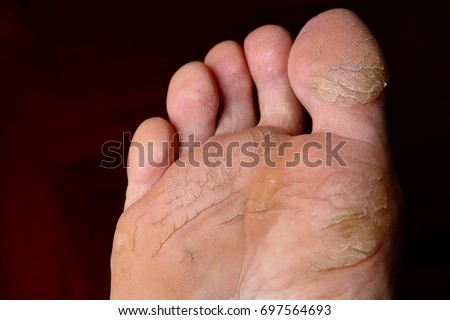dry cracked feet,cracked heels and feet,bare feet with cracked #697564693
