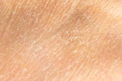 dry cracked human skin surface. close-up macro. skin during the healing procedure of acid peeling.