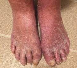 Dry skin of both feet in 93 years old male.  It shows cracking on the skin with hard skin tissue look  and swollen of feet and becomes susceptible to corns, calluses, warts, and fungal infections.