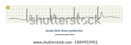 During treadmill exercise test, one patient developed acute sick sinus syndrome, sinus P wave disappeared and junctional escape rhythm appeared. Stock fotó ©