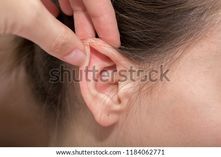 Ears protruding from under the hair, otolaryngologist treatment of diseases in the ears, hearing loss, eavesdropping, Otoplasty plastic surgery, elf ears, lop-eared big-eared #1184062771