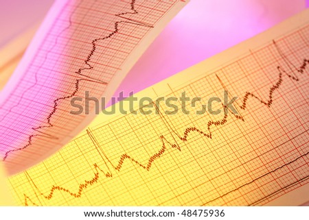 ECG(Pulse trace) for medical backgrounds