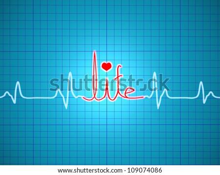 ECG showing life