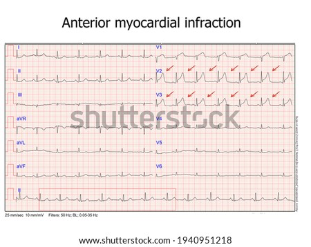 ecg with anterior myocardial infraction. real ecg from a patient that was hospitalized at the cardiac care unit Photo stock ©