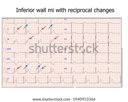 ecg with inferior myocardial infraction. real ecg from a patient that was hospitalized at the cardiac care unit Photo stock ©