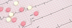 ECG with rhythm of artificial pacemaker ventricular pacing with pills on desk. Selective focus