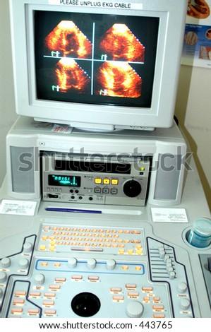 máquina cardio do eco