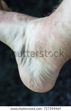 Eczema - Foot disease on the foot of the foot. #757394464