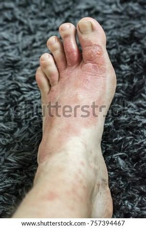 Eczema - Foot disease on the foot of the foot. #757394467