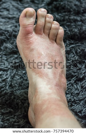 Eczema - Foot disease on the foot of the foot. #757394470