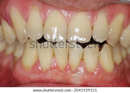 edge to edge bite occlusion. If  front teeth bite together exactly on their edges, then you have an edge-to-edge bite. Ideally, front teeth should close down over the front of  lower front teeth