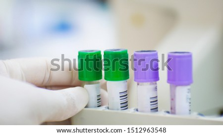 EDTA purple test tube compleate blood count test and lithium heparin green test tube for blood chemistry test laboratoey concept.