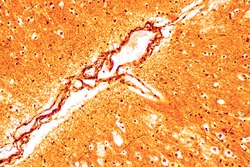 Education Spinal cord, Nerve, Cerebellum, Cortex and Motor Neuron Human under the microscope in Lab.