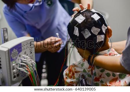 EEG electrode placement to patient during EEG record, Electroencephalogram (EEG)